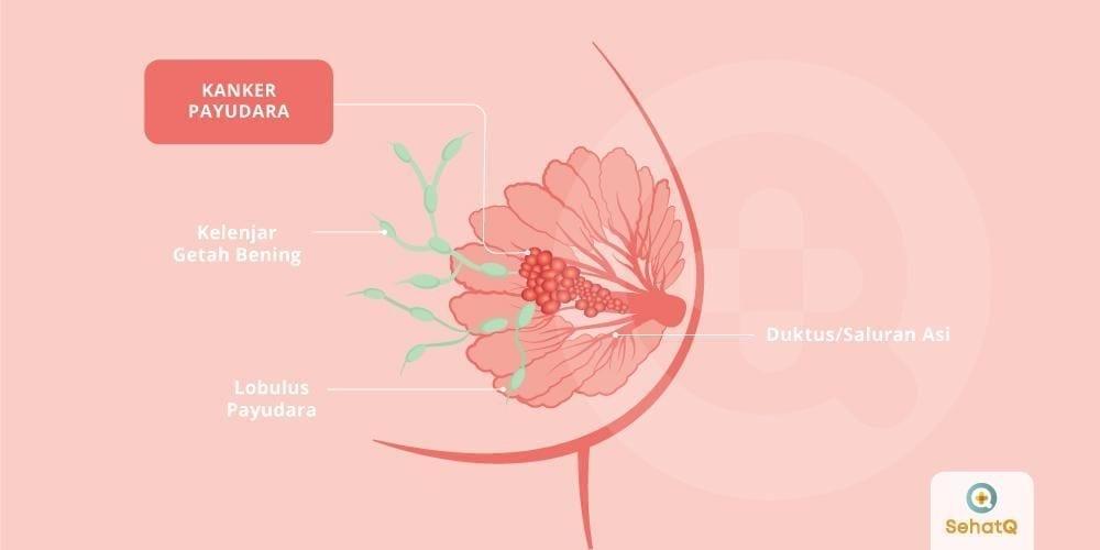 Gejala Kanker Payudara dan Tumor Payudara   Portal Berita Ulasku.com